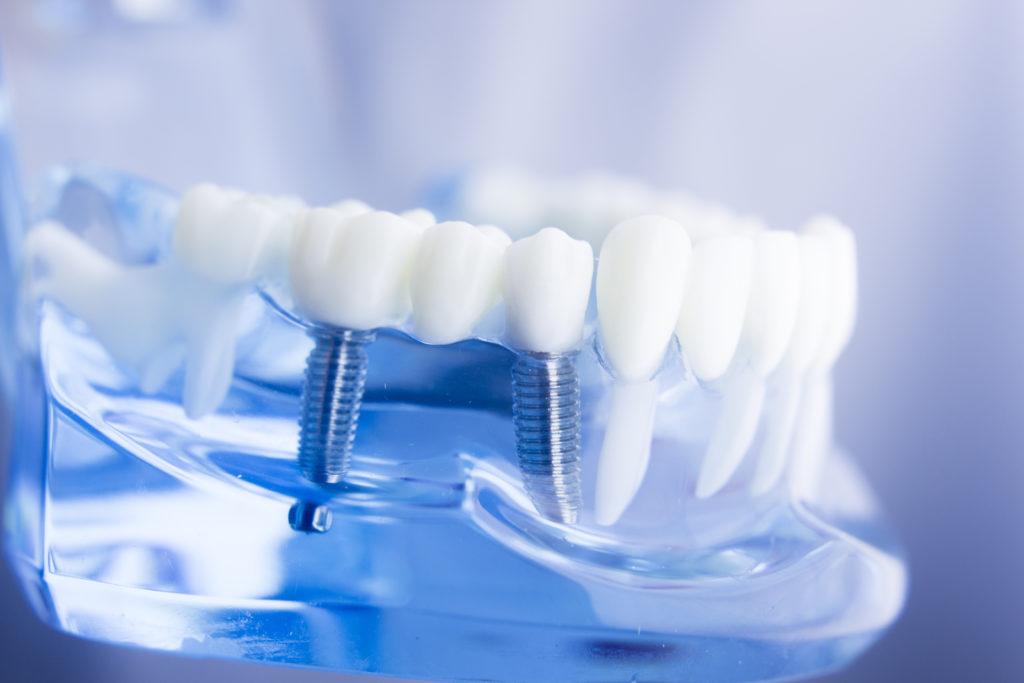 Мост на зубы или имплантат