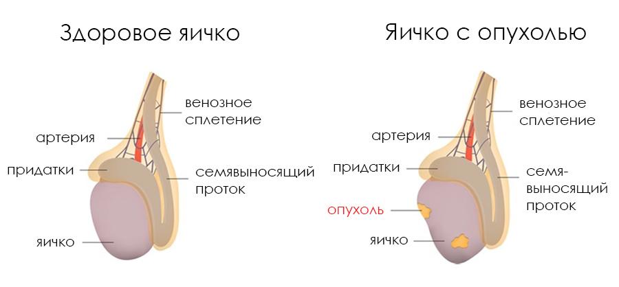 Урология опухоль в мошонке