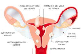 Фибромиома матки – доброкачественная опухоль