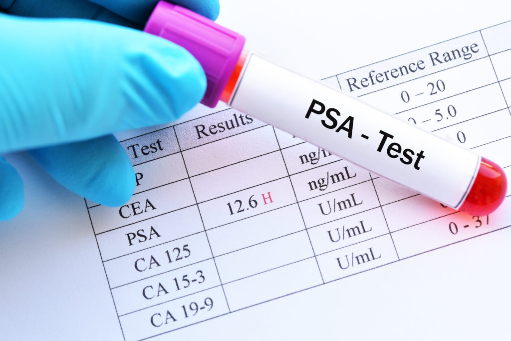 Что такое онкомаркер ПСА