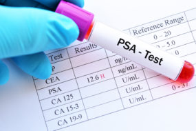 Что такое анализ крови на ПСА и нормы для мужчин