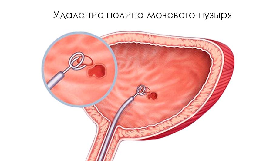 Лечение полипа уретры у женщин и удаление полипов