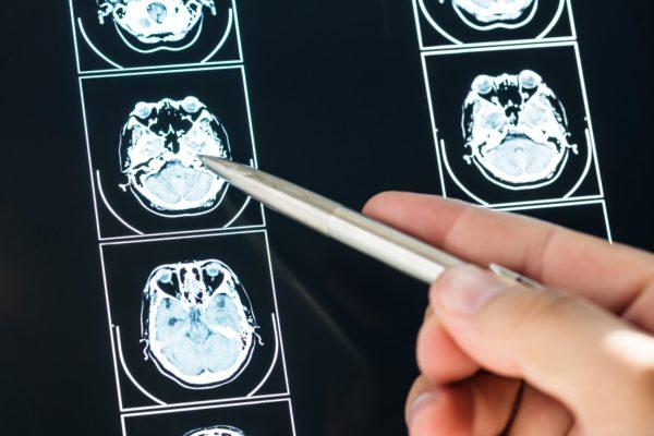 Первые признаки рака головного мозга