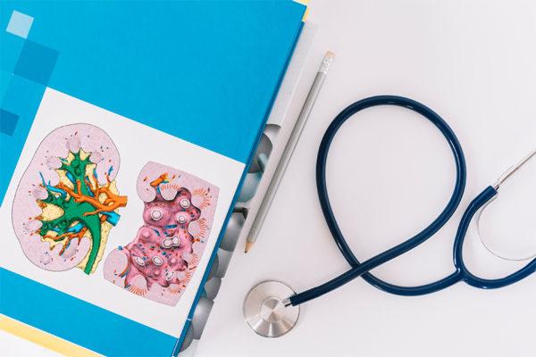 Гидронефроз: причины, симптомы и лечение